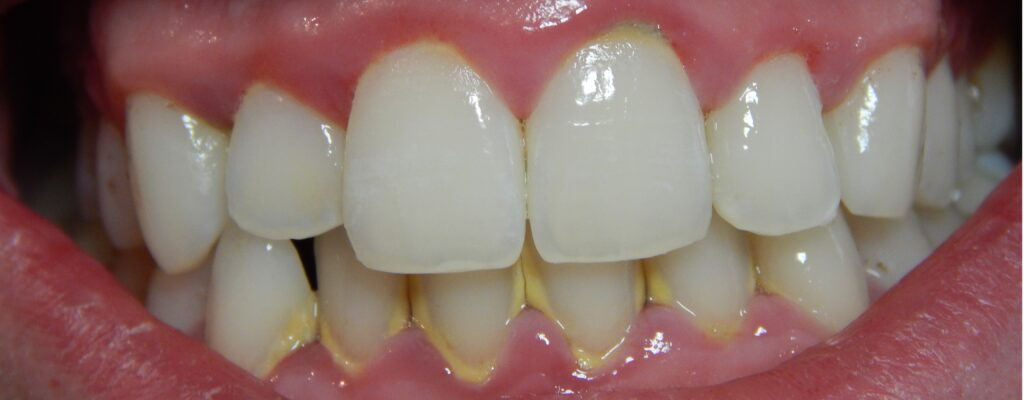 gum disease:red bleeding gums - gingivitis